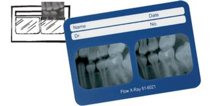 Picture of Perfect Pocket X-Ray Film Mounts - Flow X-ray